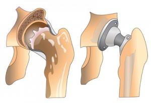 Этапы эндопротезирования тазобедренного сустава