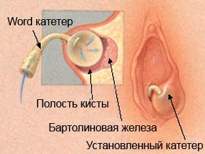 kista- word kateter