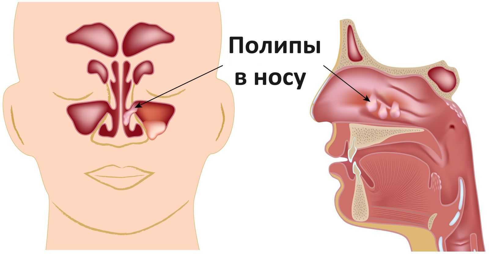 Полипsd носу
