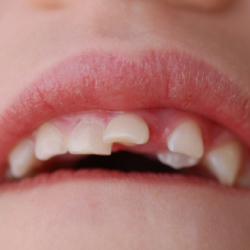tramva-zubov-u-detey1-250x250