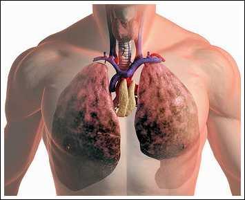Рак-легких-1-стадии