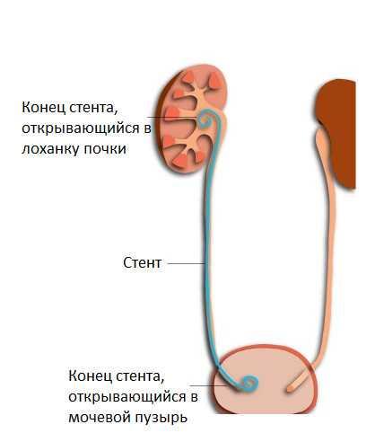 36-mochetochnikovyj-stent