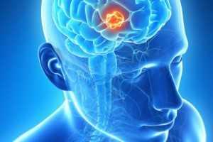 мальформации головного мозга:
