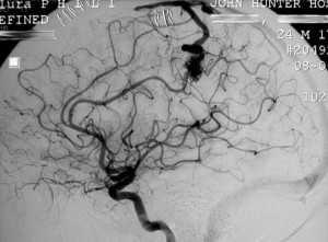 мальформации сосудов головного мозга