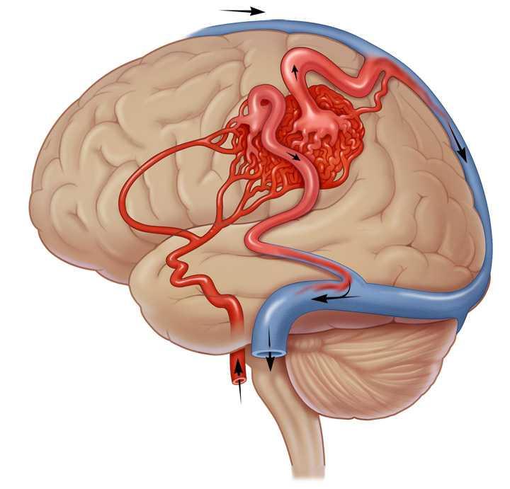 лечения артериовенозной мальформации