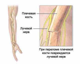 nerv6