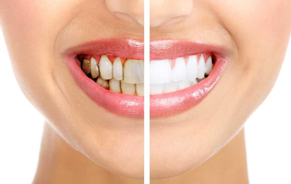 Обзор современных методов удаления зубного камня