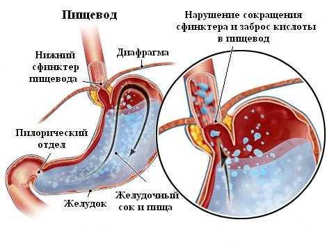 Рефлюкс эзофагита