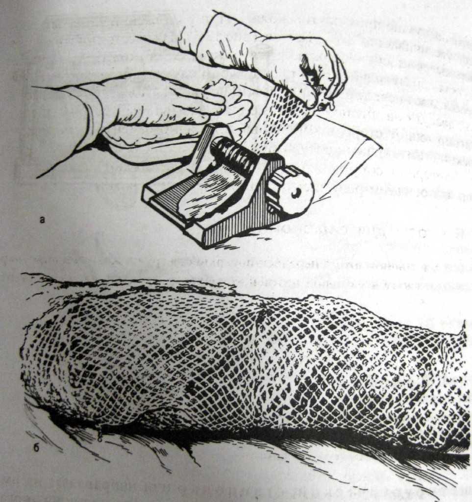 Перфорированный кожный лоскут