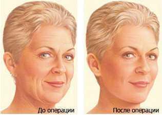 krugovaya-podtajka-lica