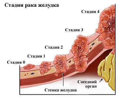 stomach3