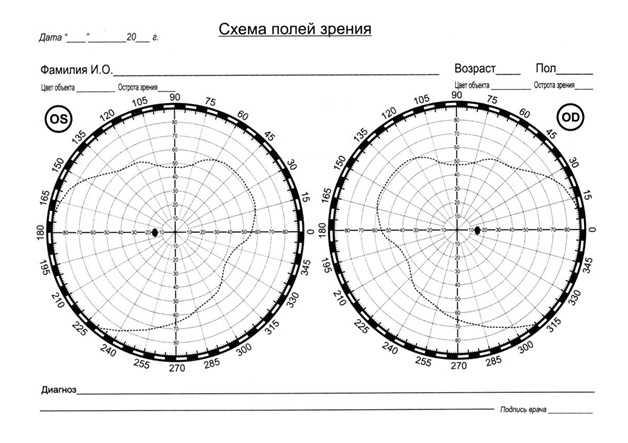 Дифдиагностика глаукомы с катарактой