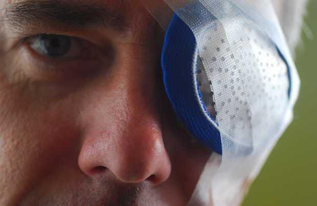 Реабилитация после удаления катаракты