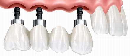 Протезирование зубов на имплантах