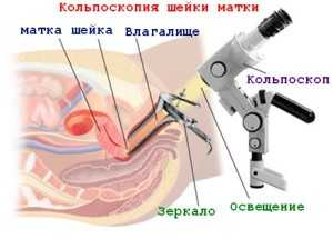 Как и где проводится кольпоскопия шейки матки?