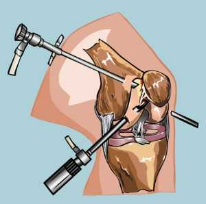 Операция на мениск