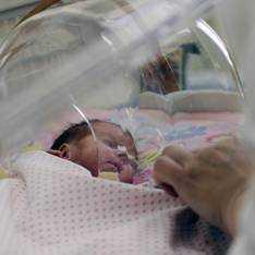 Аневризма сердца у детей и новорожденных