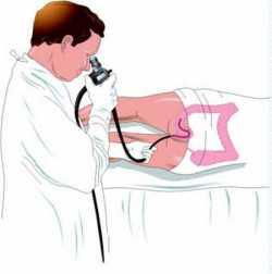 Симптомы и стадии рака прямой кишки