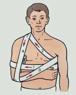 Первая помощь при вывихе плечевого сустава
