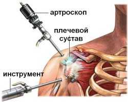 Хирургическое лечение вывиха плечевого сустава