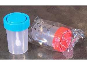 как берут анализ кала, соскоб на энтеробиоз и анализ крови