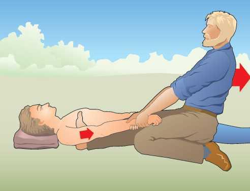 Вправление вывиха плечевого сустава