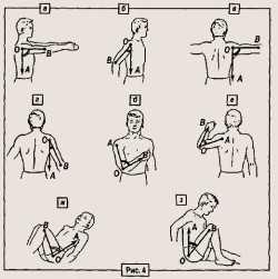 ЛФК при вывихе плечевого сустава