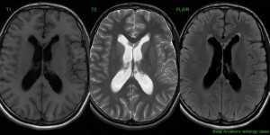 Симптомы метастазов - диагностика