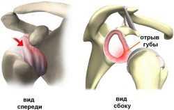 Анатомия плечевого сустава - почему происходит вывих?