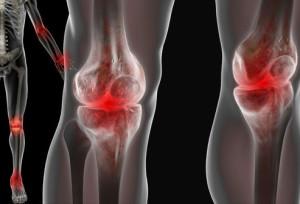 artropatija1 - Sistemski eritemski lupus
