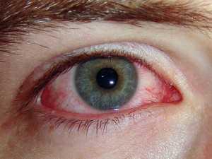Сухой кератоконъюнктивит