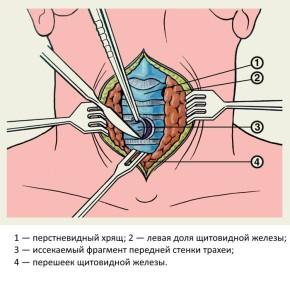 Выполнение трахеостомии