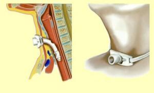 Установленная трахеостома