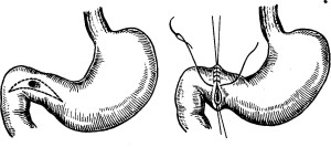 Ушивание язвы желудка