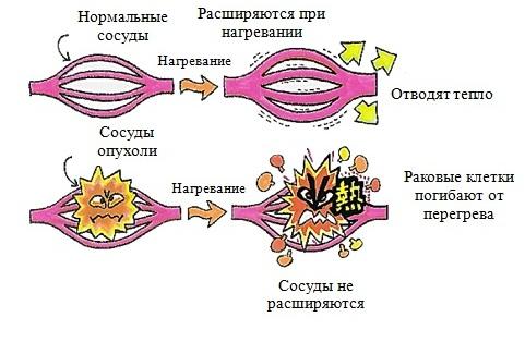 Принцип действия гипертермии
