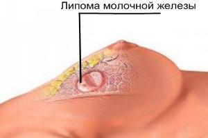 Липома в груди