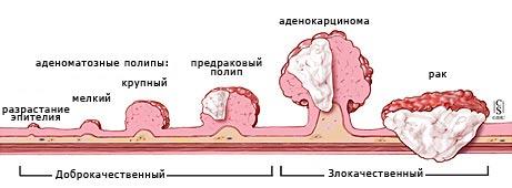 Стадии развития полипоза