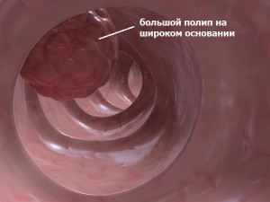 полипы толстой кишки,классификация,причины,симптомы,лечение полипов толстой кишки народными средствами,удаление полипов,общая хирургия