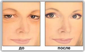 Блефаропластика до и после