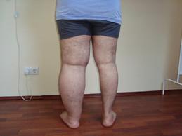 Пример лимфедемы ноги
