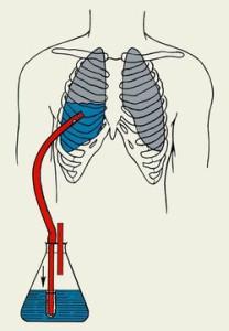 Отток крови