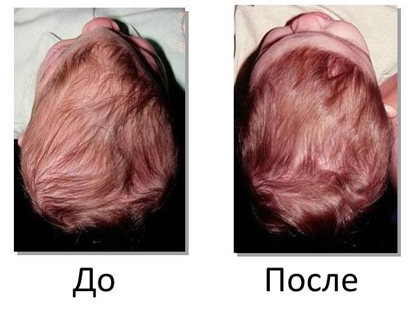 До и после коррекции