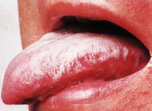 Вид лейкоплакии на языке