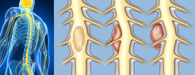Виды опухолей спинного мозга