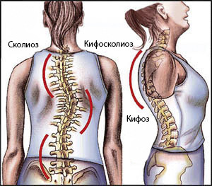 Признаки кифосколиоза
