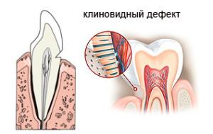Симптомы клиновидного дефекта зубов