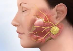 Причины и симптомы сиалоаденита