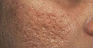 Угревые шрамы