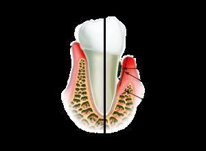 Зубная боль при гингивите и пародонтите