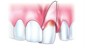 Болит зуб после ударов или травм